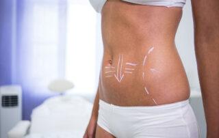 abdominoplastia-o-que-esperar-da-recuperacao-pos-cirurgia